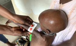 남수단에서 영양실조 검사를 받는 아이. 빨간색 표시는 중증 급성영양실조를 앓고 있음을 나타낸다. ⓒ월드비전